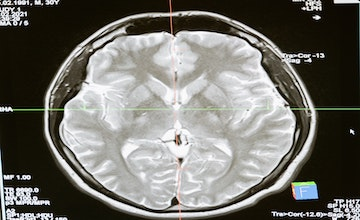 Structures Discovered in Brain Cancer Patients Can Help Fight Tumors